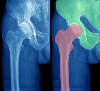 Orthopedic Hip